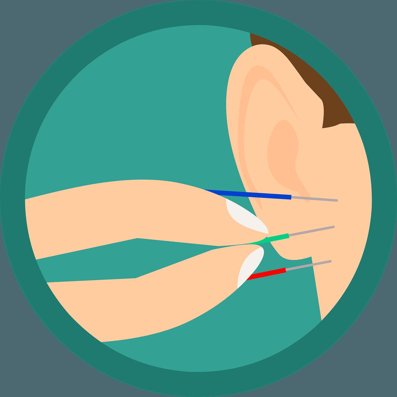 Hvordan virker akupunktur?